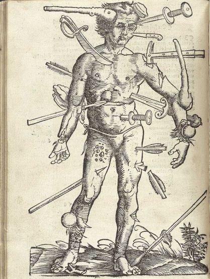 sst--wound man